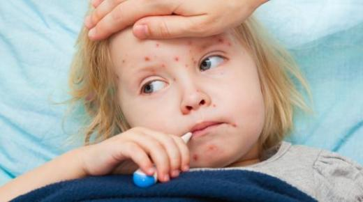 أعراض مرض الحصبة