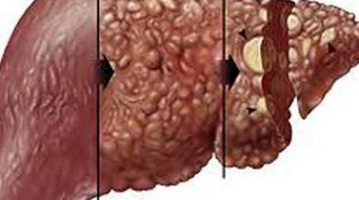 سرطان الكبد الثانوي