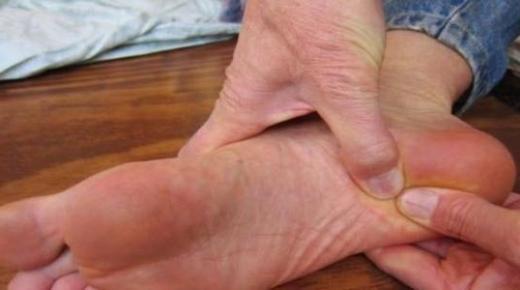 ظهور حبوب أسفل القدمين