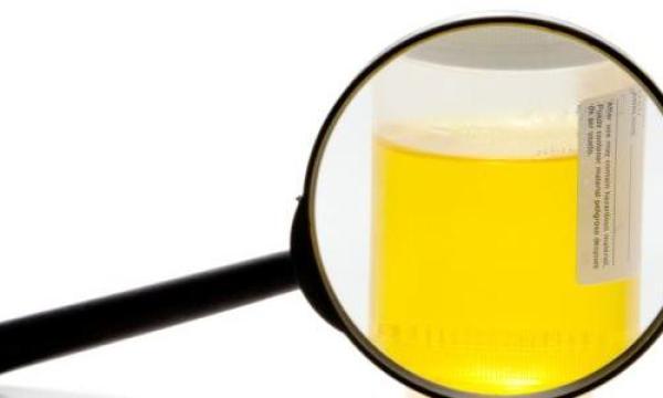 ما هو علاج التهاب البول ؟