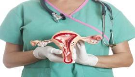 أسباب تليف الرحم وطرق علاجه