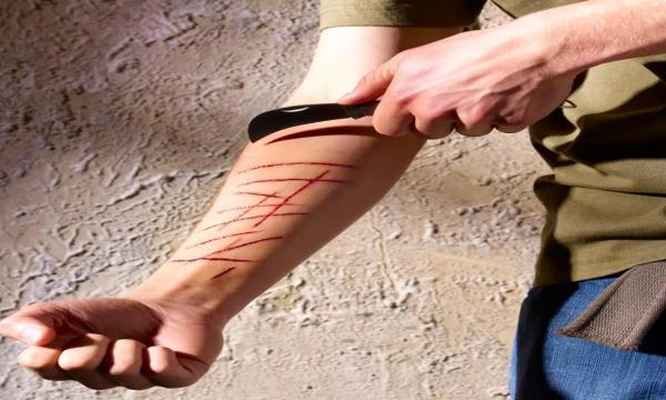 أعراض إيذاء النفس وكيفية علاجه