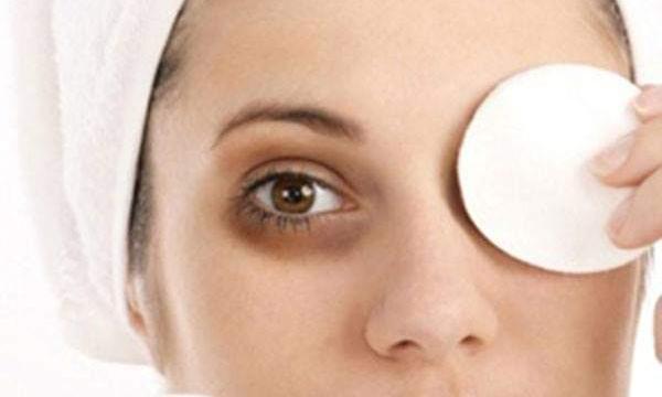 علاج الهالات السوداء تحت العينين بوصفات طبيعية