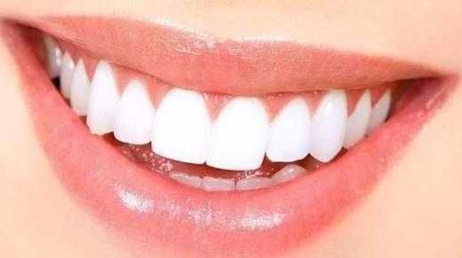 طرق تبييض الأسنان: ما الطريقة التي يجب أن تختارها؟