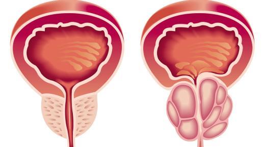 تعرف على أعراض مرض البروستاتا عند الرجال