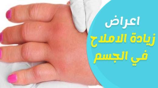 أعراض زيادة نسبة الأملاح في الجسم وطرق علاجها