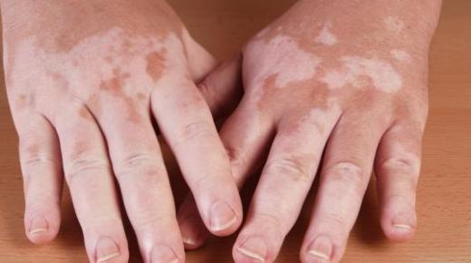 أعراض البهاق وعلاجه بالعلاج الضوئي
