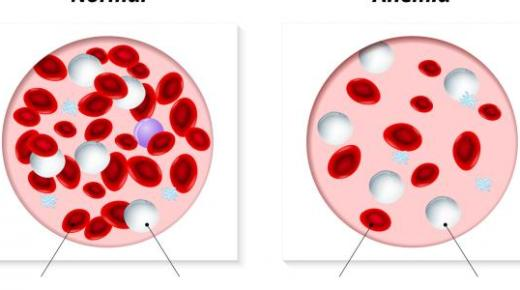 أسباب فقر الدم وكيفية تشخيصه