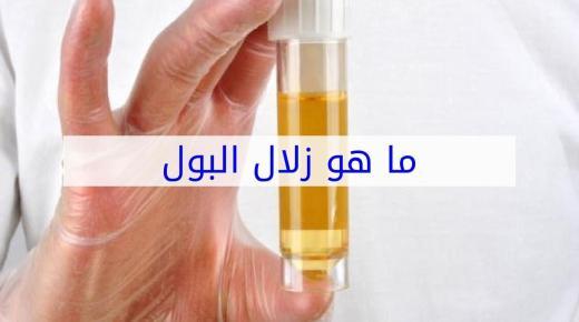 تعرف على أعراض مرض الزلال