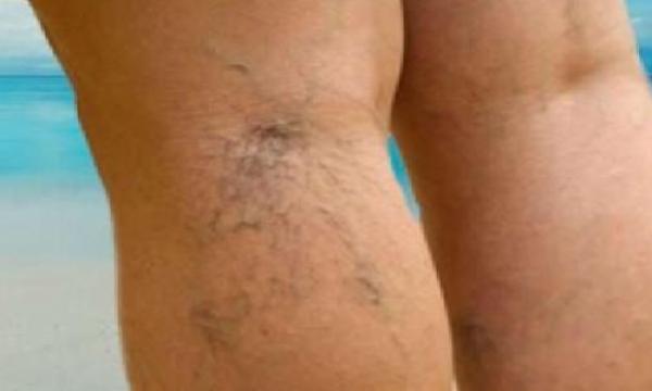 أسباب مرض دوالي الساقين