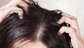 التخلص من فطريات الرأس بالعلاجات الطبيعية