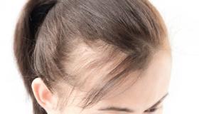 أسباب فقدان الشعر في سن مبكرة وطرق العلاج