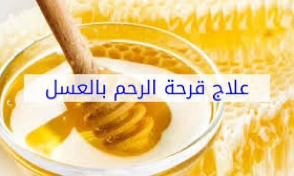 علاج قرحة عنق الرحم باستخدام العسل