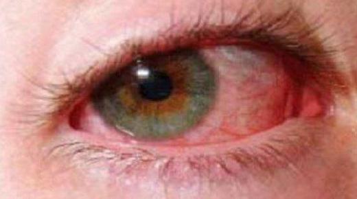 ما هو علاج ضغط العين ؟