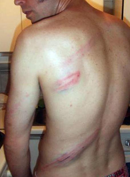 Barcelona heridas porra antidisturbios