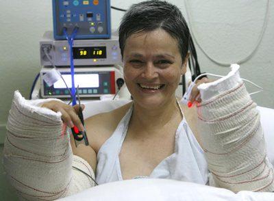 Alba N. C. recibió el trasplante de los dos brazos