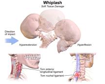 Whiplash diagram el paso tx