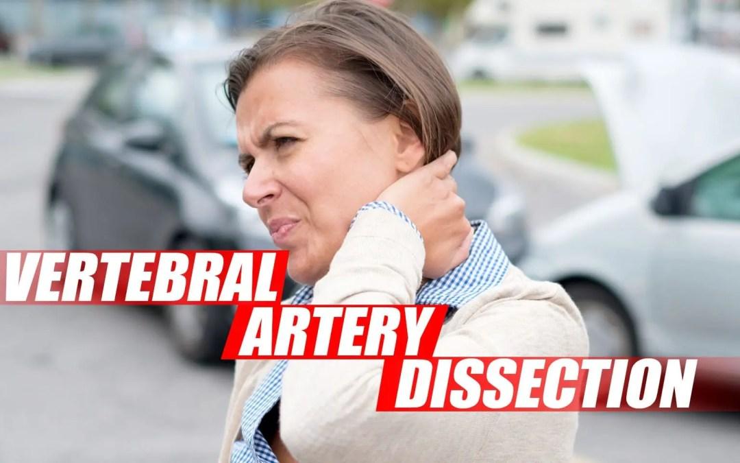 Disección de la arteria vertebral durante el examen quiropráctico