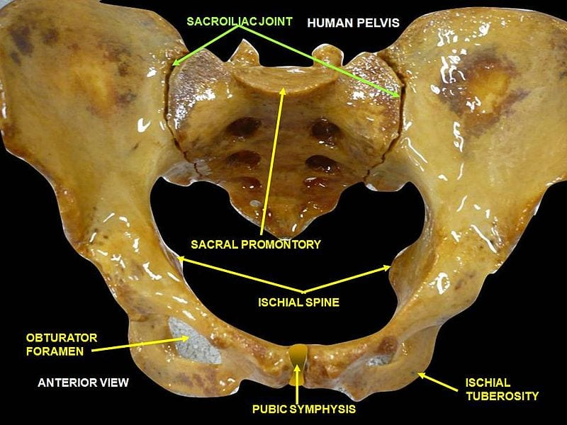 Iliosacralgia