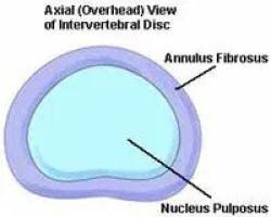 Axial View of Intervertebral Disc | El Paso, TX Chiropractor