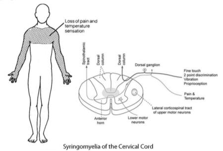 Patrón de Neuropatía en el Cabo y el Mantón | El Quiropráctico El Paso, TX