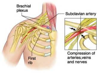 Thoracic Outlet Syndrome | El Paso, TX Chiropractor