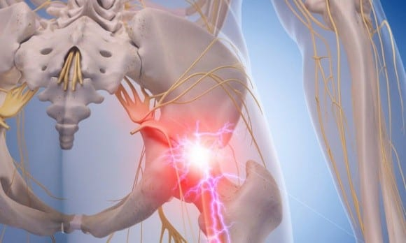 Understanding the Facts About Sciatica in El Paso, TX