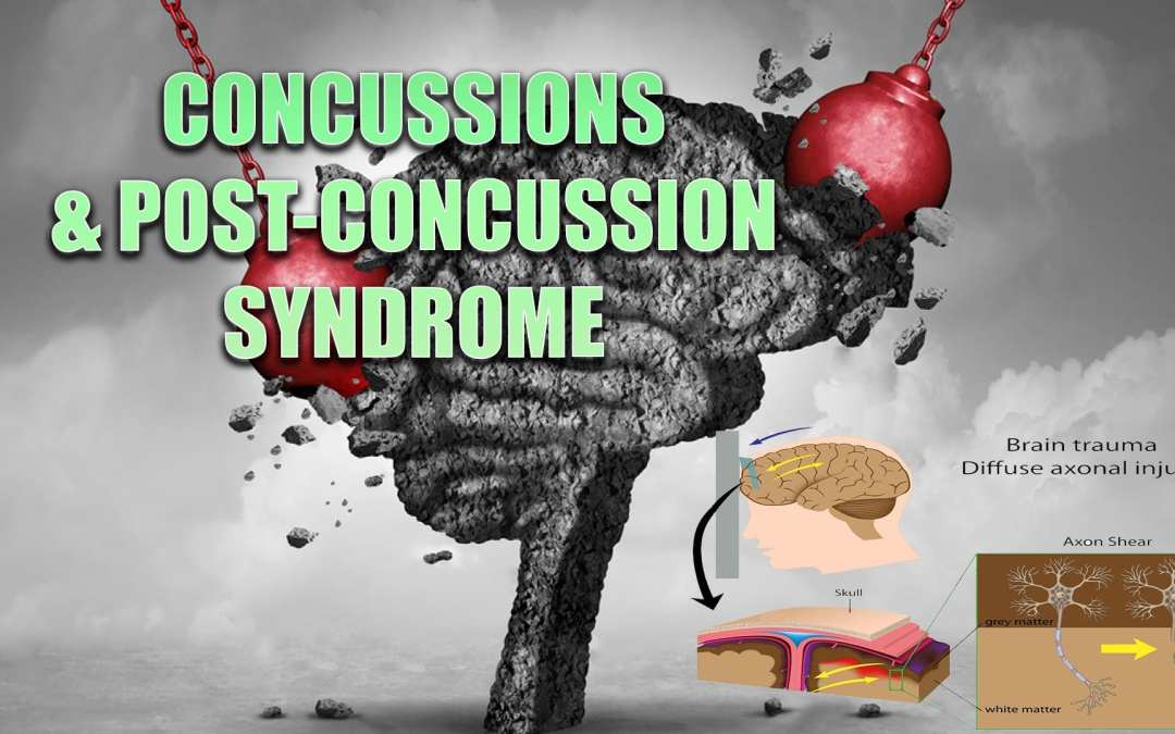 Commozioni cerebrali e sindrome post-concussione