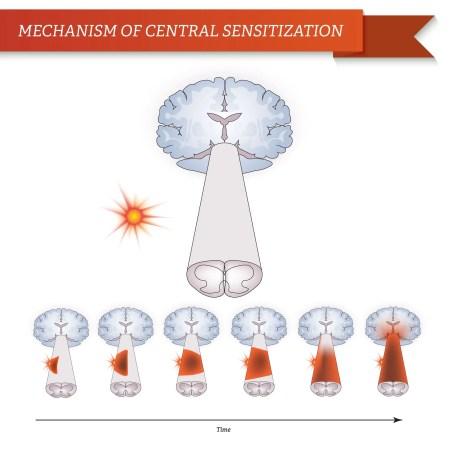 Mecanismo de sensibilización central | El Quiropráctico El Paso, TX