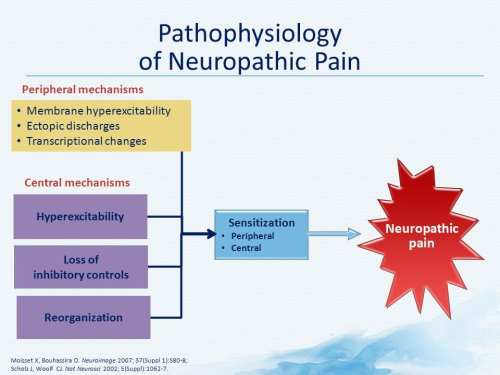 Pathophysiology of Neuropathic Pain Diagram | El Paso, TX Chiropractor