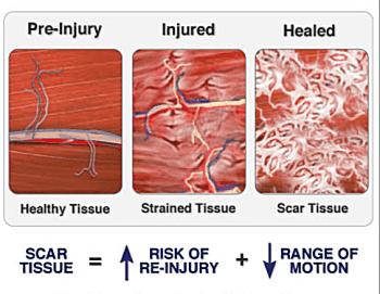 Scar Tissue Diagram 1 | El Paso, TX Chiropractor