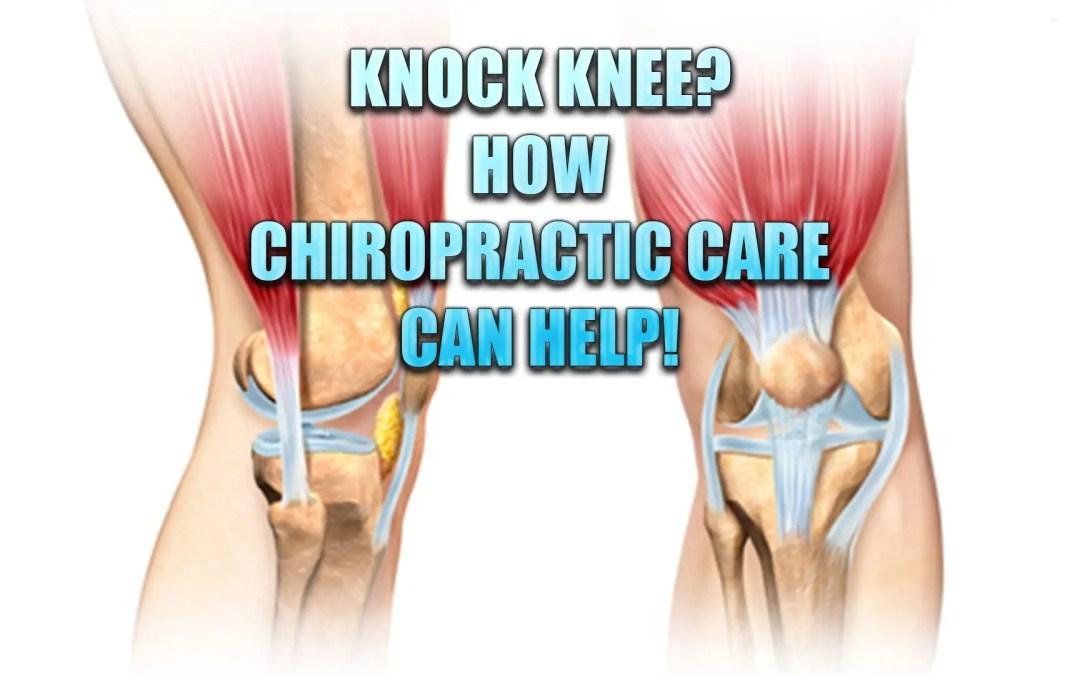 Knock Knee? La chiropratica può aiutare con questa condizione
