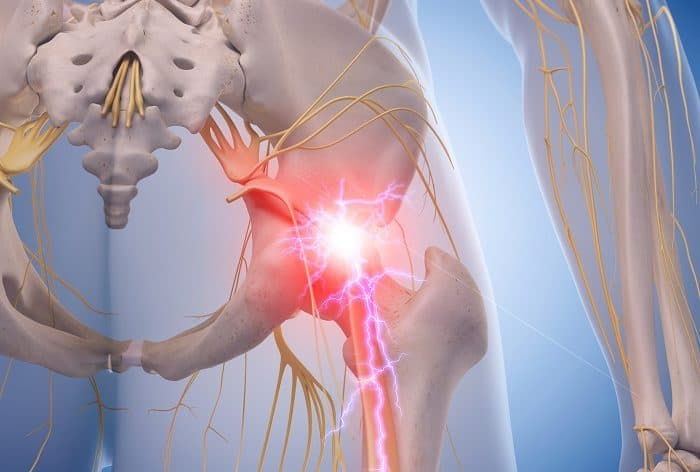 Piriformis Syndrome Management