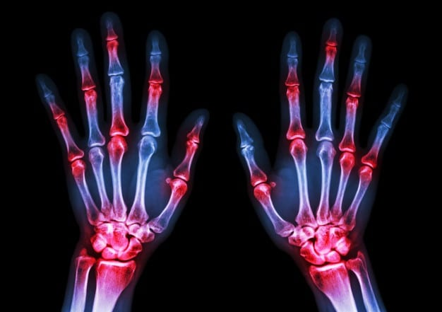 Diagnosis and Management of Rheumatoid Arthritis