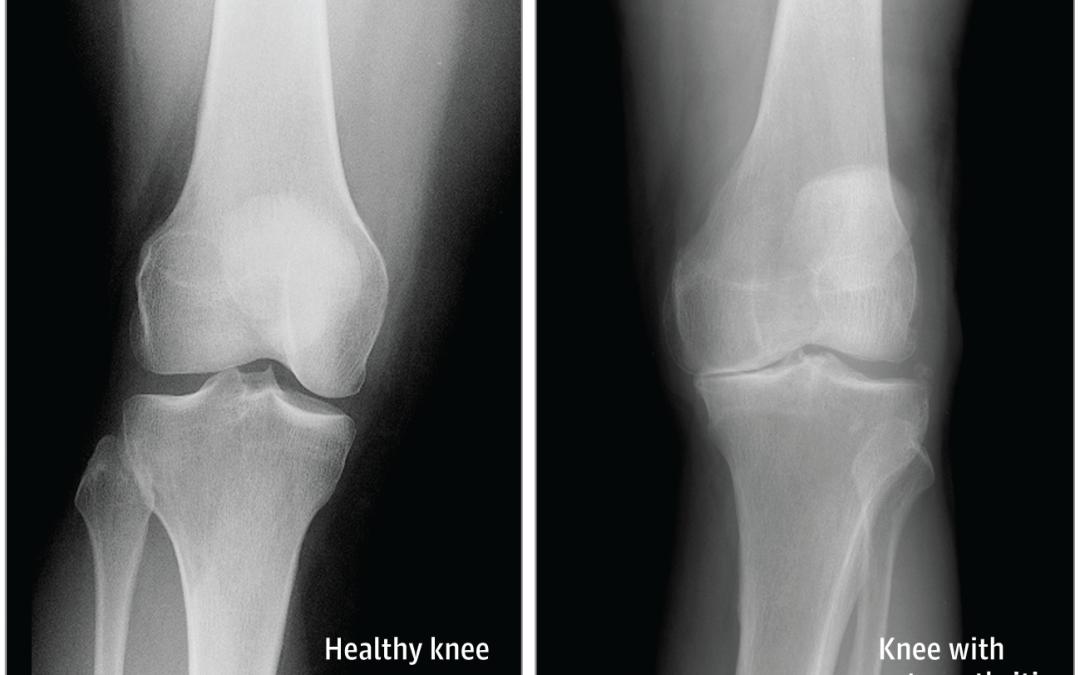 Come l'artrite può colpire il ginocchio