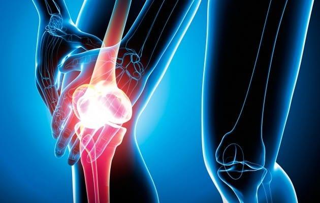 Valutazione dei pazienti che presentano dolore al ginocchio: Parte I. Storia, esame fisico, radiografie e test di laboratorio