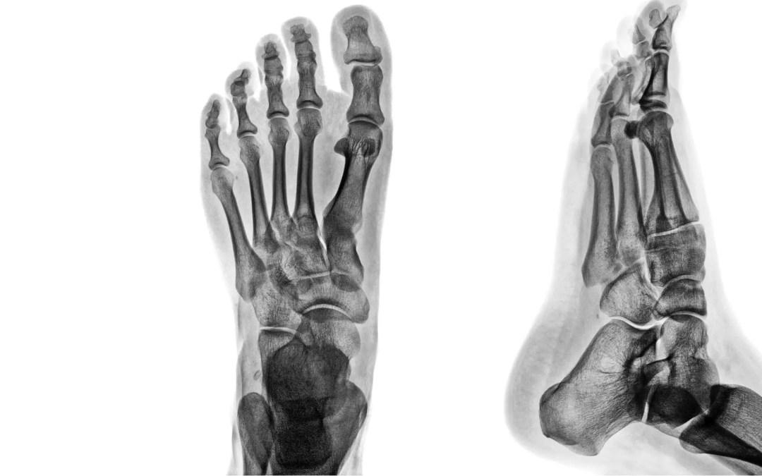 Artrite e trauma di imaging diagnostico alla caviglia e ai piedi II | El Paso, TX.