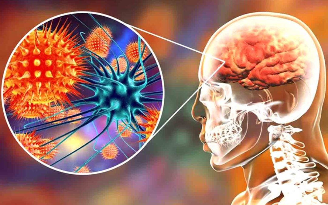 Functional Neurology: Understanding Autoimmune Brain Disease