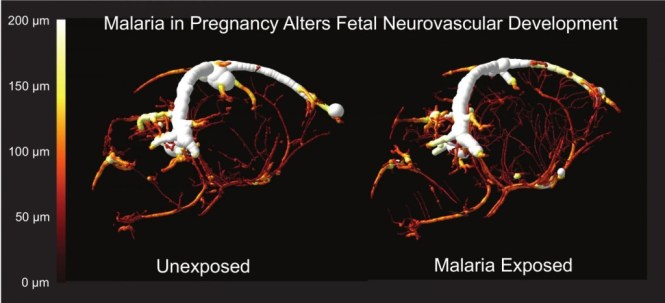 Malaria in pregnancy leads to cognitive defects in offspring - Study