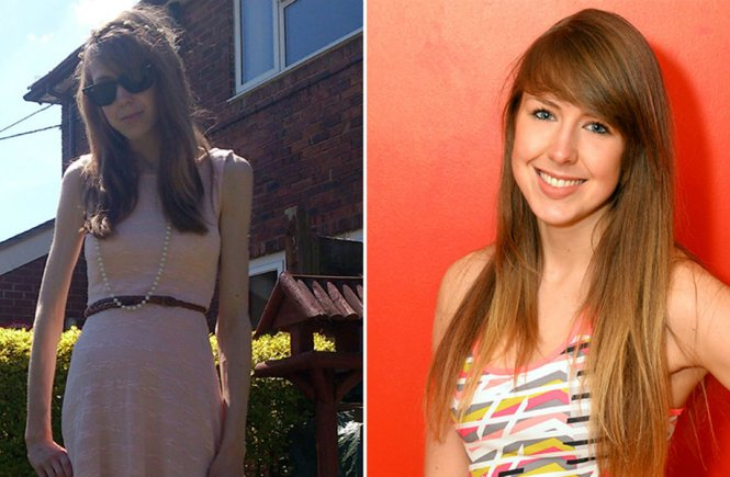Young Yoman Beats 5years Anorexia Battle To Become A Personal Trainer