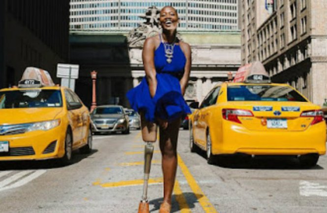 Amputee Woman Becomes Famous Fashion Blogger - elsieisy blog
