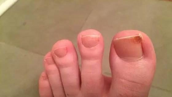 Para cortar as unhas do pé diabético, use sempre alicates e cortadores esterilizados.