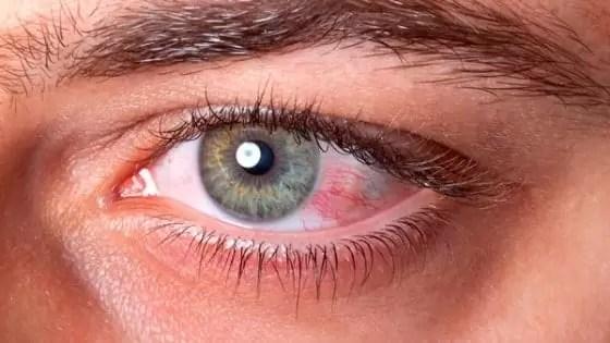 Sintomas de pressão alta - Sangue nos olhos