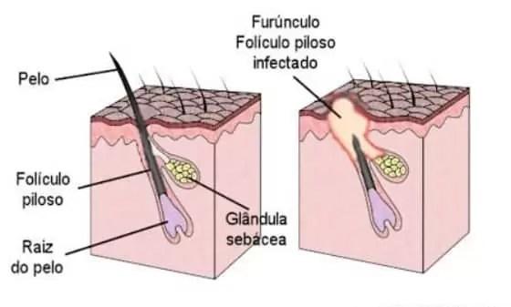 O que causa furúnculo?
