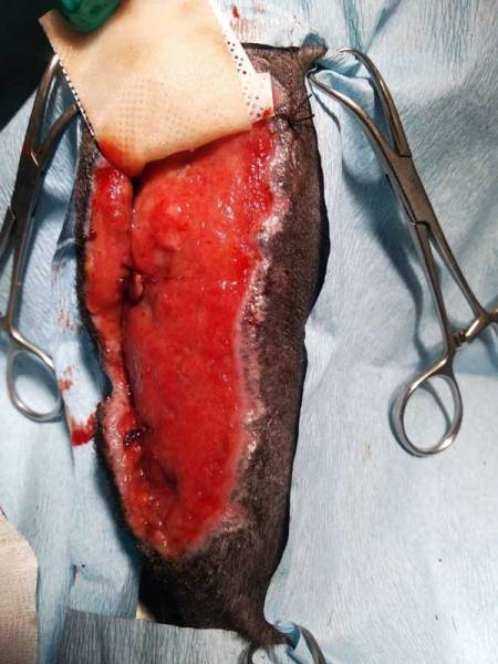 wound form tumor mass removal