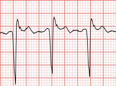 Subtle ECG Findings in...Q Wave Formation