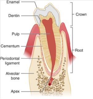 Dental Fractures
