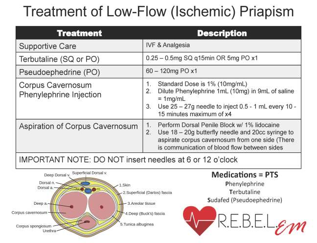 Treatment of Low-Flow Priapism