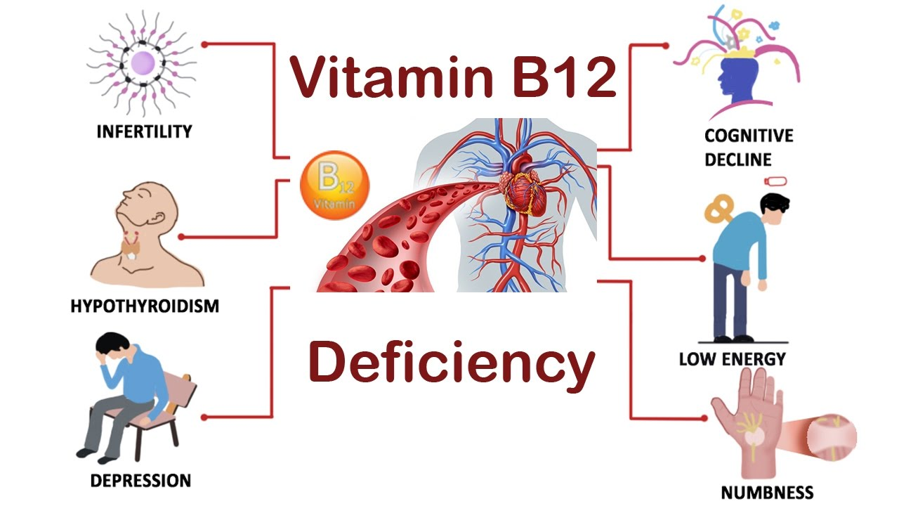 Does Vitamin B12 Deficiency Lead To Weight Gain recommendations