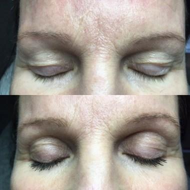 Ultra V Plasma drooping eyelids